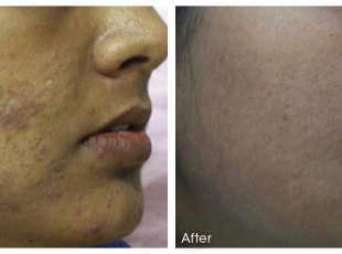 Dermaroller: Hyper pigmentation Before & After