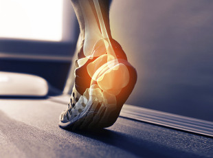 $100 Off Custom Orthotics