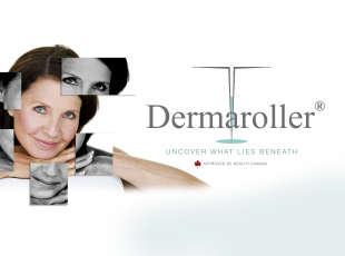 Dermaroller Now Offered at Eve